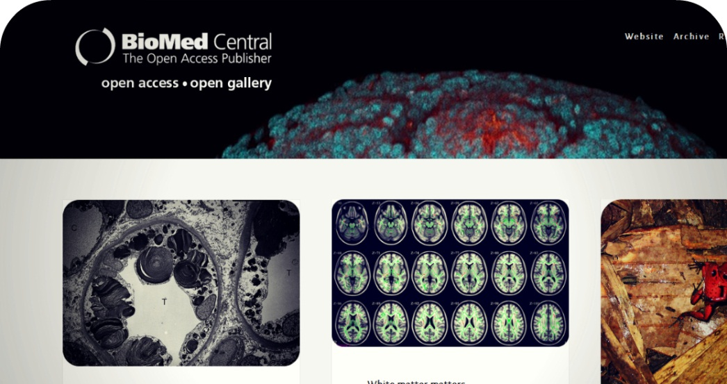 With This In Mind, We Have Started Our Own BioMed Central Tumblr, For  Scientific And Medical Images. We Want To Show That Science Can Be  Beautiful.