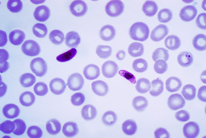 Thin blood smear of Plasmodium falciparum macro- and microgametocyte