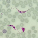 Trypanosoma rangeli blood trypomastigotes are often mistaken for blood form trypomastigotes of Trypanosoma cruzi leading to unnecessary and dangerous treatment