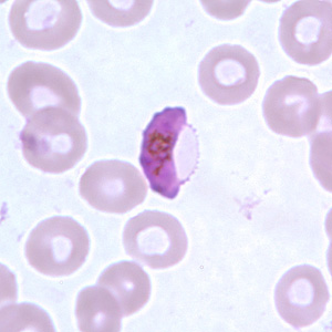 A Plasmodium gametocyte (image from CDC)