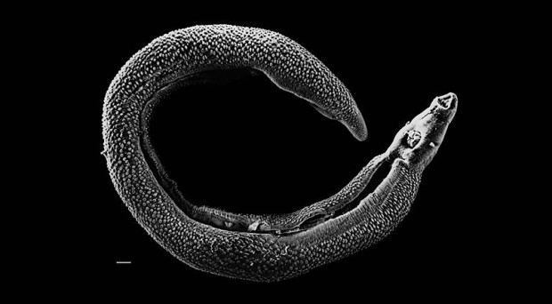 Electron micrograph of an adult male Schistosome. Bar at bottom left represents 500 μm. Photo Credit – David Williams, Illinois State University retrieved from: https://en.wikipedia.org/wiki/Schistosoma