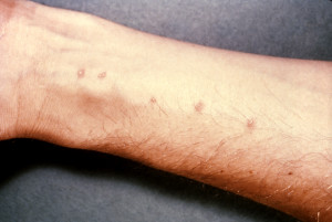 Caption: Rash caused by Schistosome cercaria entering the skin Photo Credit:Content Providers(s): CDC - commons.wikimedia