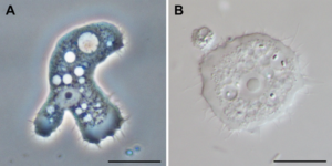 Acanthamoeba trophozoites. Image from Wikimedia commons, authors Jacob Lorenzo-Morales, Naveed A. Khan and Julia Walochnik