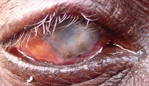 Blindness caused by repeated infection with Chlamydia trachomatis