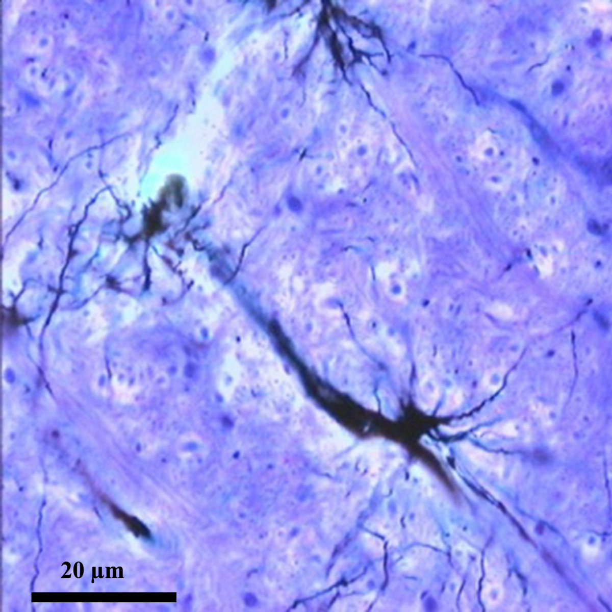 Protoplasmic astrocyte proximal to a blood vessel