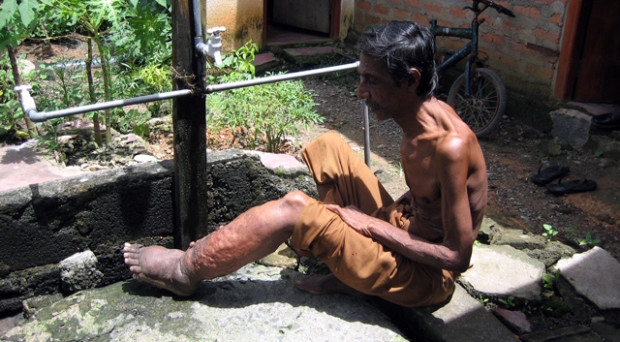 Elephantiasis research paper