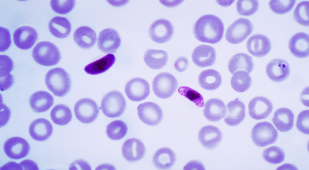 Blood smear containing P. falciparum parasite