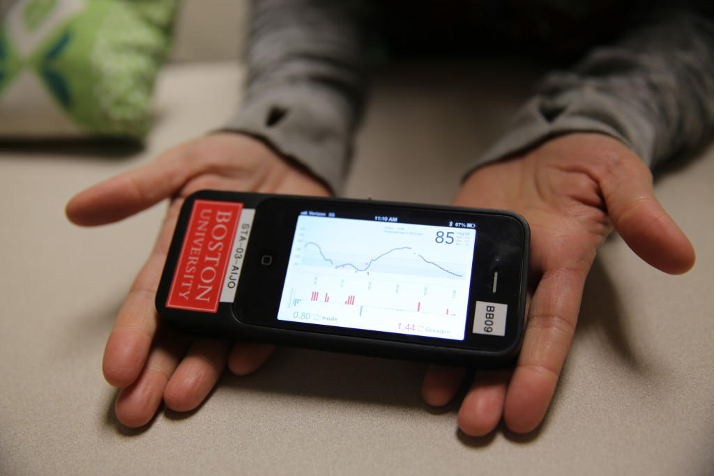 "iPhone-based part of the ""bionic pancreas"", which monitors glucose levels and communicates with insulin and glucagon pumps to automatically dose the hormones into the bloodstream"