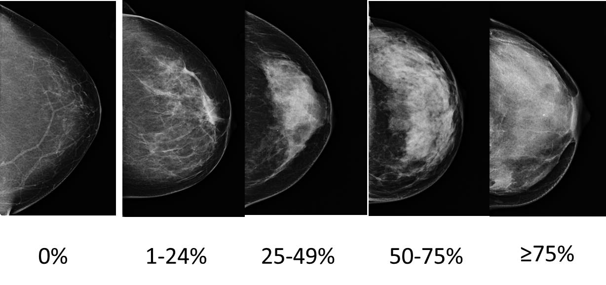 Mammography and breast density