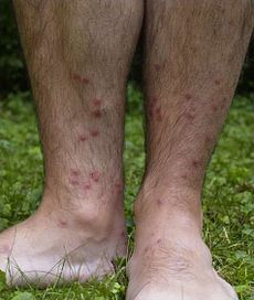 Swimmer 39 s itch sailors fishermen and swimmers beware - Rash on legs after swimming in pool ...