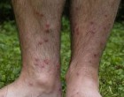 Swimmers itch on lower legs. image from wikimedia