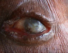 Ocular onchocerciasis. Image from http://www.infectionlandscapes.org/2012/04/onchocerciasis.html