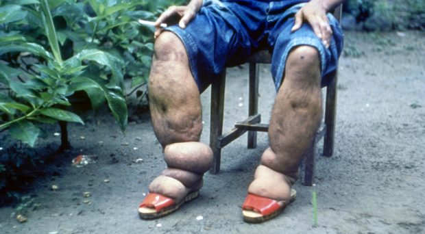 Elephantiasis due to lymphatic filariasis infections. Source: Wikimedia Commons