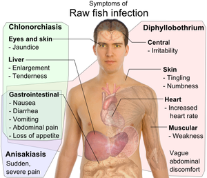 Differential symptoms of parasite infection by raw fish. Source: Wikipedia