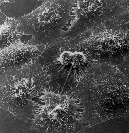 a study of the hela cells This represented an enormous boon to medical and biological research it is  estimated that total weight of all the hela cells ever grown.