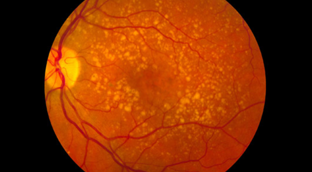 Exploring The Link Between Thyroid Hormones And Vision Loss On
