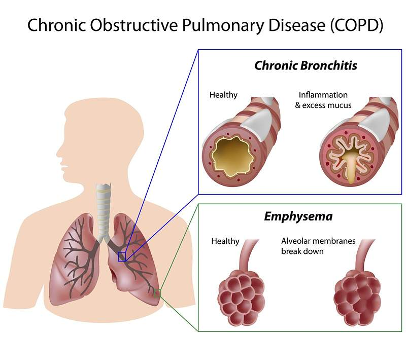 an analysis of the causes and treatments of asthma a chronic lung disease Asthma chronic disease involving the inflammation of we don't know the exact causes of asthma and we don't know obstructive lung disease (copd & asthma.