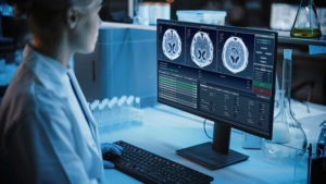 Doctor working on computer showing MRI brain scans